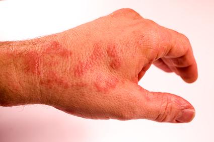 Artikelgebend sind individuelle Therapien gegen Neurodermitis.