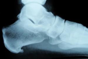 Fersensporn Röntgenbild